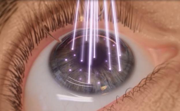 Resultado de imagen para cirugia con laser