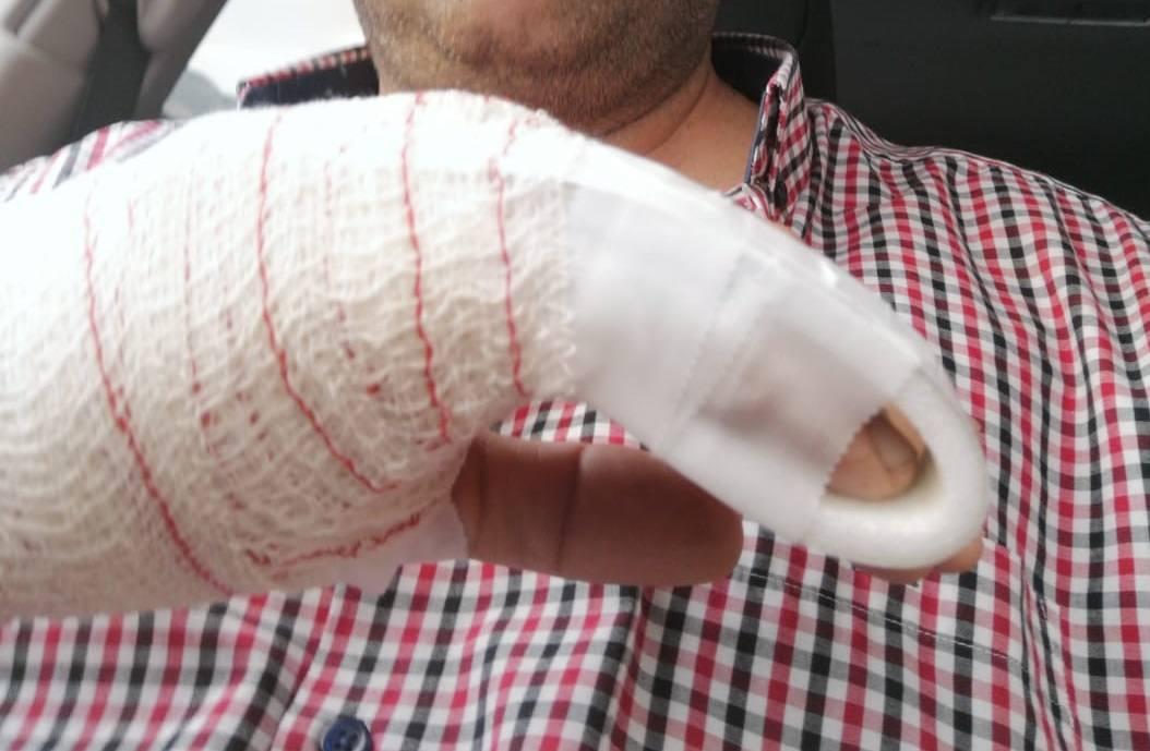 El taxista muestra el dedo partido tras la agresión./IDEAL