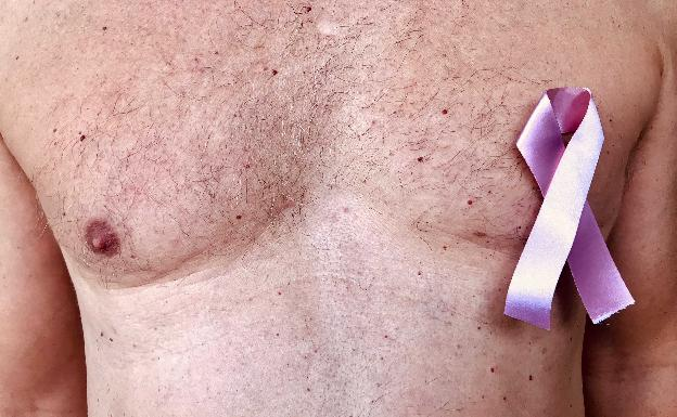 el cáncer de próstata es contagioso antes de ser operado