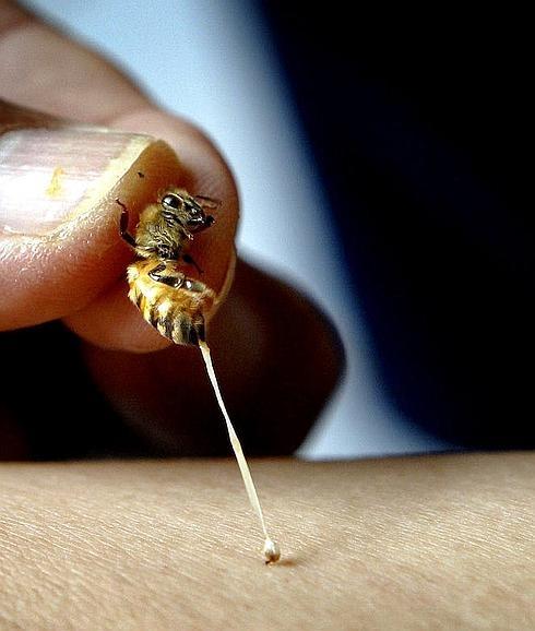 Que te pique una abeja, \'receta\' para una piel perfecta   Ideal